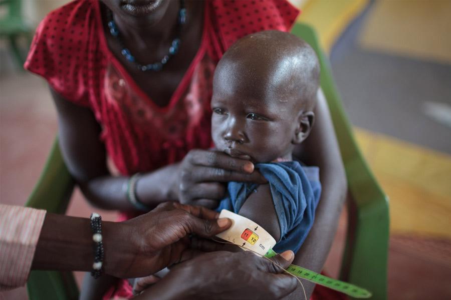 George* en brazos de su madre mientras personal sanitario toma sus medidas para determinar su nivel de desnutrición.