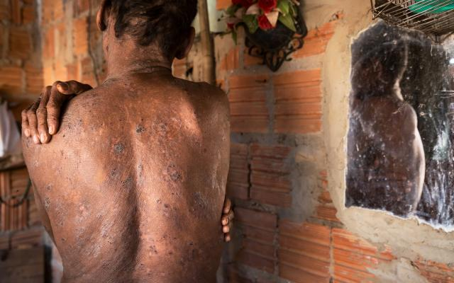 Carlos shows the skin damage he reported was caused by chemical use on fruit plantations in North-Eastern Brazil.